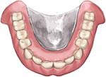 プレミアム義歯