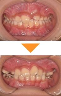 (症例1)1本の前歯が、生えてこない(うまっている)