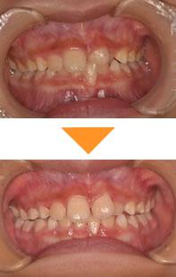 (症例2)前歯が2本だけ、反対に噛んでいる