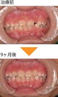 (症例3)前歯が全体的に大きい。横の前歯が、飛び出ている