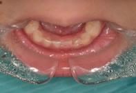 (症例4)乳歯が一本抜けてしまった