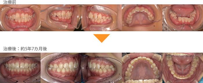 (症例6)犬歯の生えるすき間がない