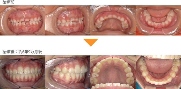(症例7)犬歯の生えるすき間がない