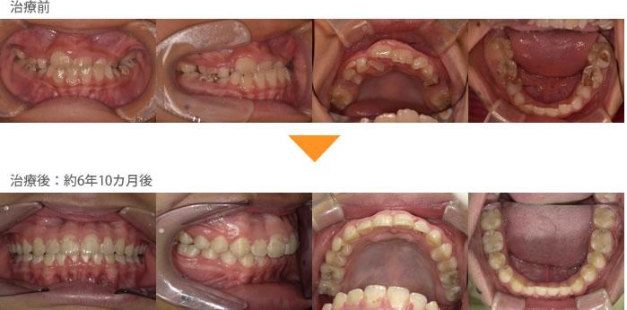 (症例8)犬歯の生えるすき間がない