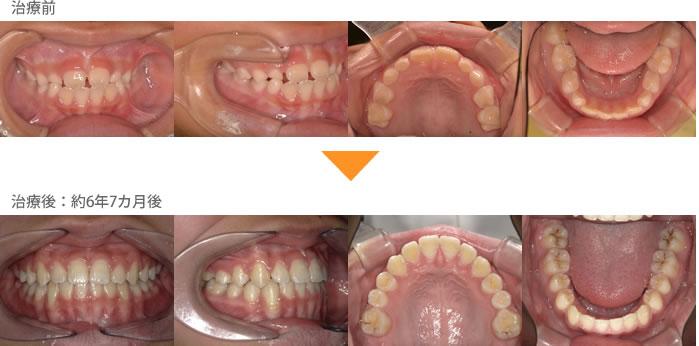 (症例9)犬歯の生えるすき間がない