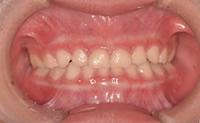 乳歯の前歯がすきっ歯でないお子さんは、歯医者さんで歯並び相談を受けましょう