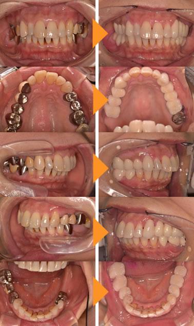 症例2:銀歯が気になる。奥歯がないが入れ歯は嫌だ(50代女性)