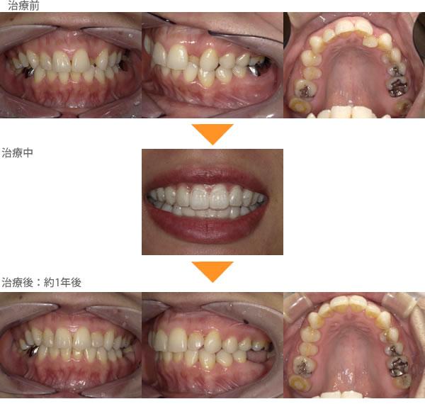 前歯の歯並びが気になる