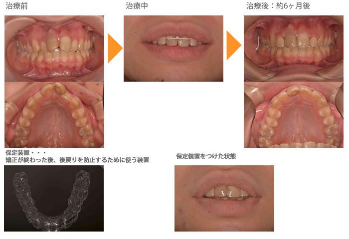 (出っ歯の症例1)上の前歯の歯並びが気になる(出っ歯)