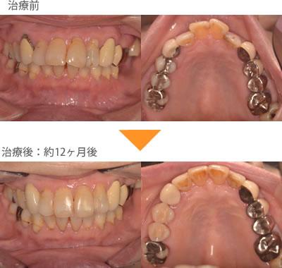 (出っ歯の症例3)前歯が2本出ている