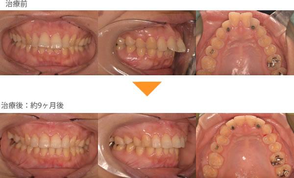 (出っ歯の症例4)前歯が出ている