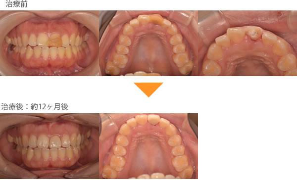 (出っ歯の症例5)ケガをして前歯が折れてしまいました