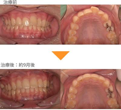 (出っ歯の症例6)上の前歯が揃っていない。出ている