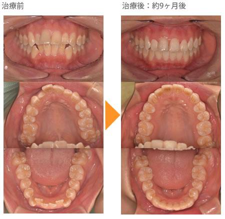 (出っ歯の症例7)上下の歯がガタガタ