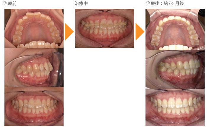 (出っ歯の症例8)上の前歯が出ている