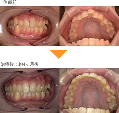 (出っ歯の症例9)上の前歯1本だけが出ている。不揃いになっている