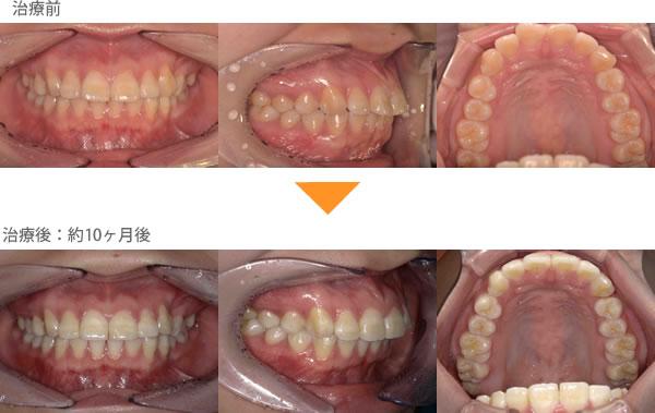 (出っ歯の症例10)上の前歯が2本出ている。