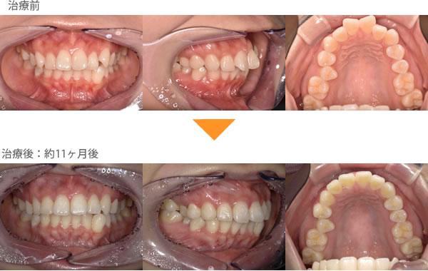 (出っ歯の症例11)上の前歯が2本出ている。がたがたしている。