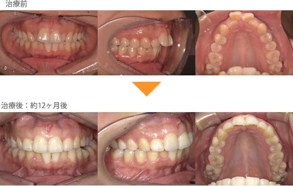 (出っ歯の症例13)上の前歯が2本張り出ている。