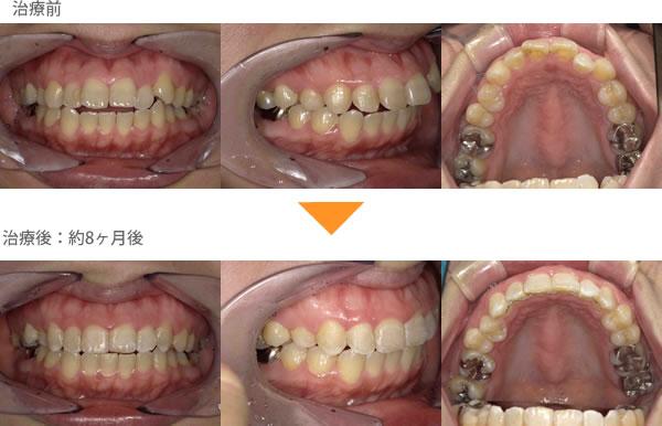(出っ歯の症例16)上の前歯の歯並びが気になる(出っ歯)