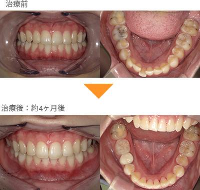 (出っ歯の症例19)下の前歯が出ている