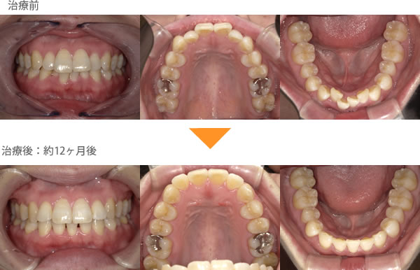 (出っ歯の症例20)上下の歯がガタガタしている