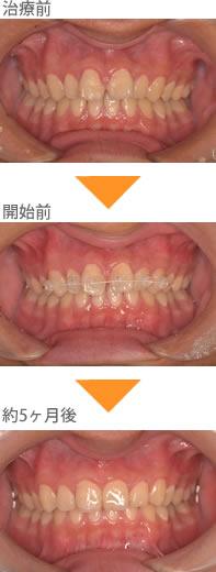 (すきっ歯の症例1)上の前歯のすきっぱが気になる