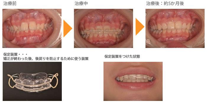 (すきっ歯の症例2)上の前歯のすきっぱと出ているのが気になる