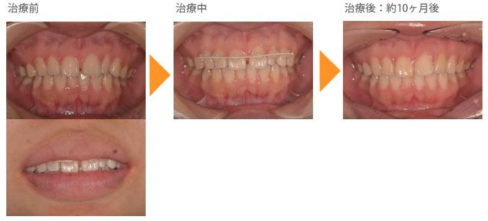 (すきっ歯の症例3)上の前歯のすきっぱが気になる