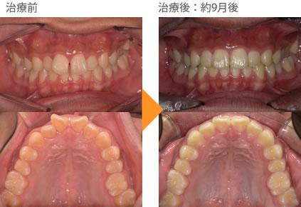 (すきっ歯の症例4)上の前歯が出ている。すき間があいている。