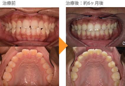 (すきっ歯の症例5)上の前歯のすき間があいている。
