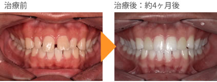 (すきっ歯の症例6)上の前歯のすき間があいている。
