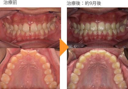 (すきっ歯の症例8)上の前歯2本出ている。すきっぱになっている