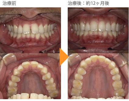 (すきっ歯の症例9)上の前歯のすき間があいている。