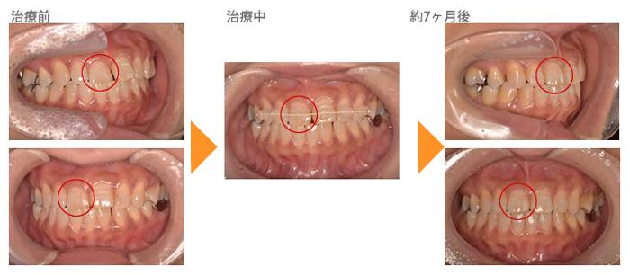 (受け口、1本だけ反対の症例1)前歯の歯並びが気になる