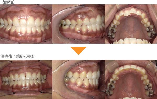 (受け口、1本だけ反対の症例3)前歯の歯並びが気になる
