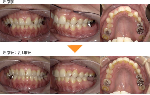 (受け口、1本だけ反対の症例4)前歯の歯並びが気になる