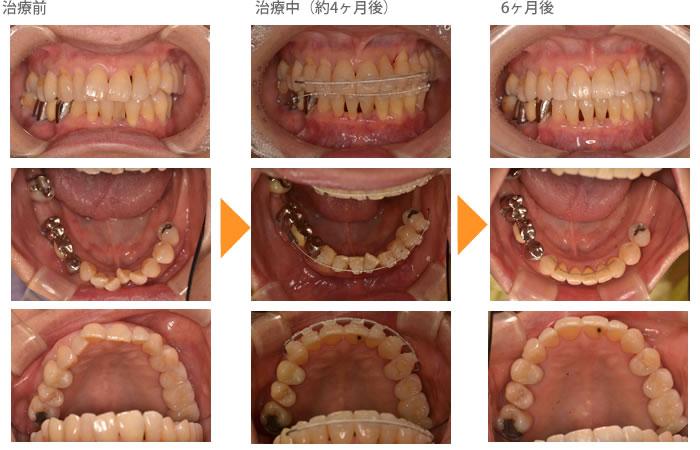 (八重歯の症例1)上の前歯の歯並びが気になる(出っ歯)