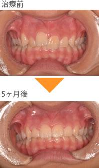 (八重歯の症例2)上の前歯の歯並びが気になる