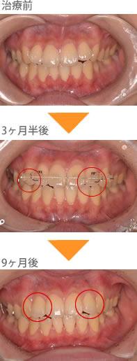 (八重歯の症例3)前歯が全体的に大きい。横の前歯が、飛び出ている
