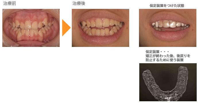 (八重歯の症例4)上の前歯の歯並びが気になる(真ん中の歯がずれている)