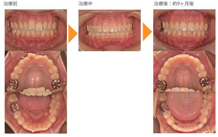 (八重歯の症例7)上の八重歯が気になる