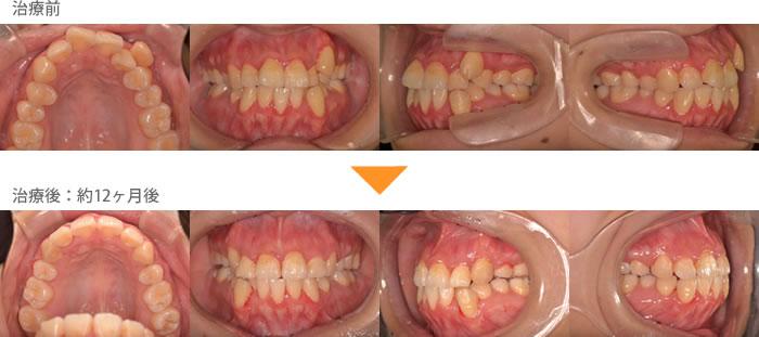 (八重歯の症例8)上の八重歯が気になる