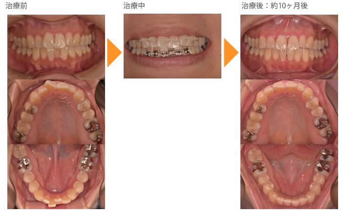 (八重歯の症例9)上下の前歯がガタガタしているのが気になる