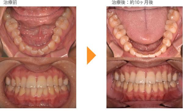 (八重歯の症例10)下の前歯がガタガタしているのが気になる