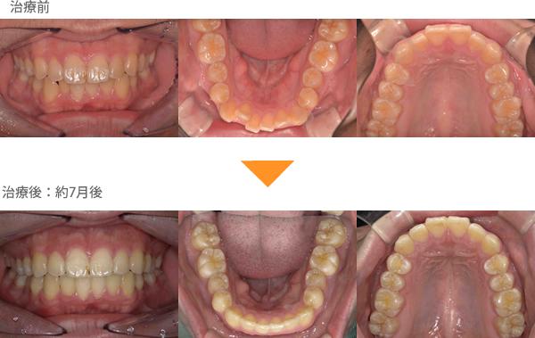 (八重歯の症例11)上の前歯が出ている。下の歯がガタガタしている。