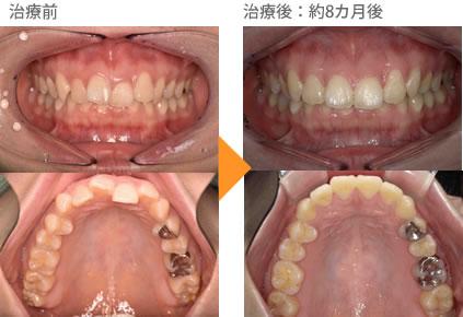 (八重歯の症例12)上の前歯がデコボコしている。