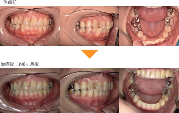 (八重歯の症例13)下の前歯がガタガタしている。1本飛び出ている。