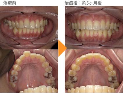 (八重歯の症例14)上の前歯が1本飛び出ている。