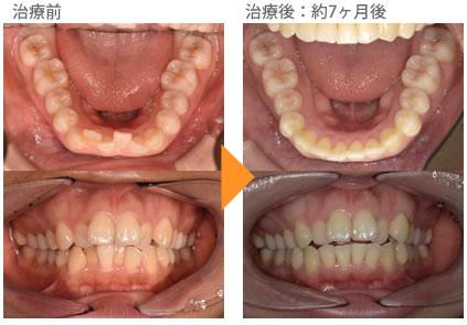 (八重歯の症例15)下の前歯が、ガタガタしている。